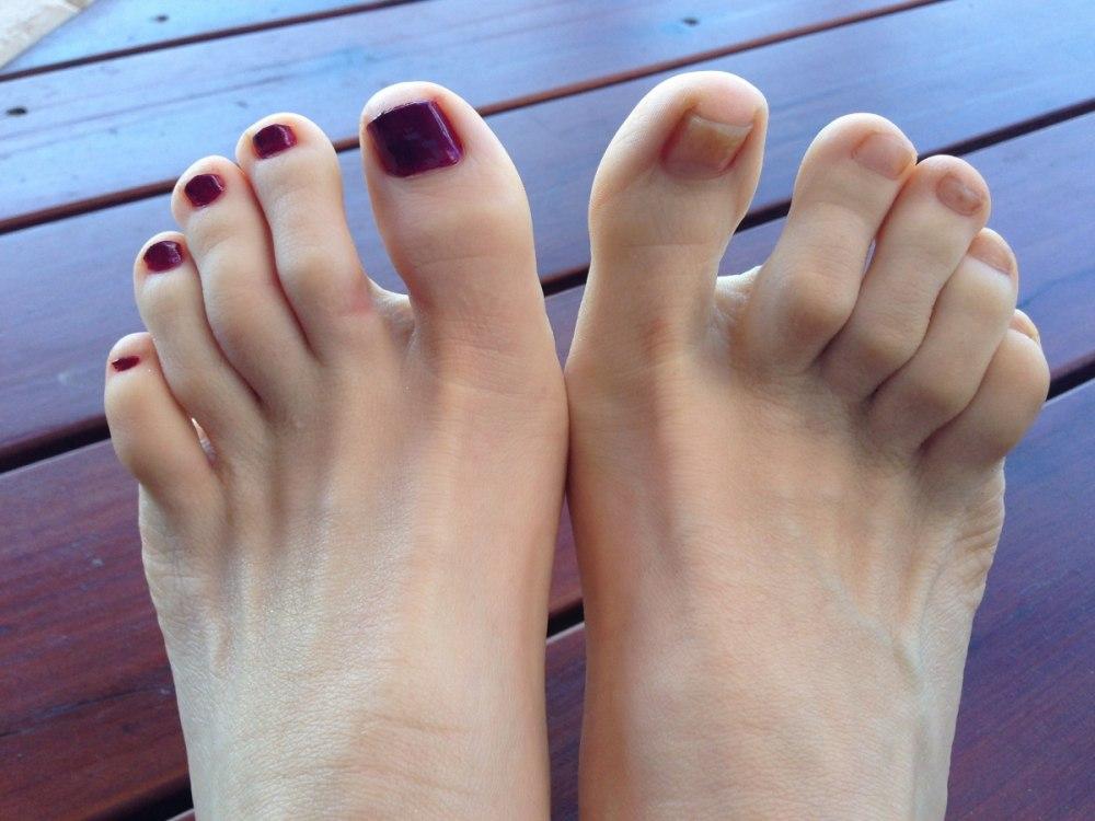 мазь от воспаления сустава на пальце ноги